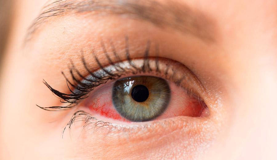 Чем похожи симптомы аллергии и сухого глаза?
