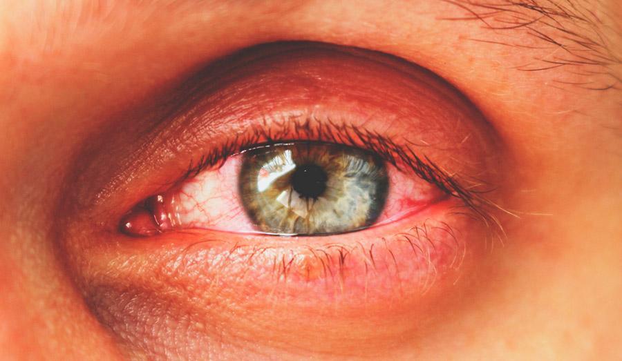 Раздражение и сухость глаз от табачного дыма